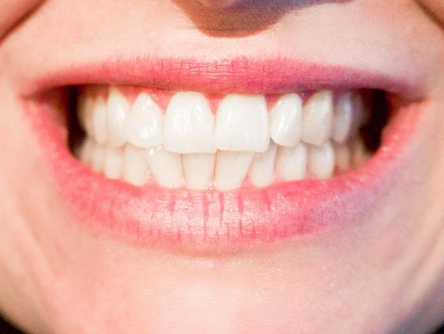 שיניים תותבות זמניות