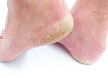 איך עלולים לקבל פטריות ברגליים