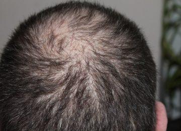3 סיבות לעשות השתלת שיער בטורקיה