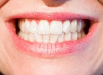 למה משתמשים בשיניים תותבות זמניות?